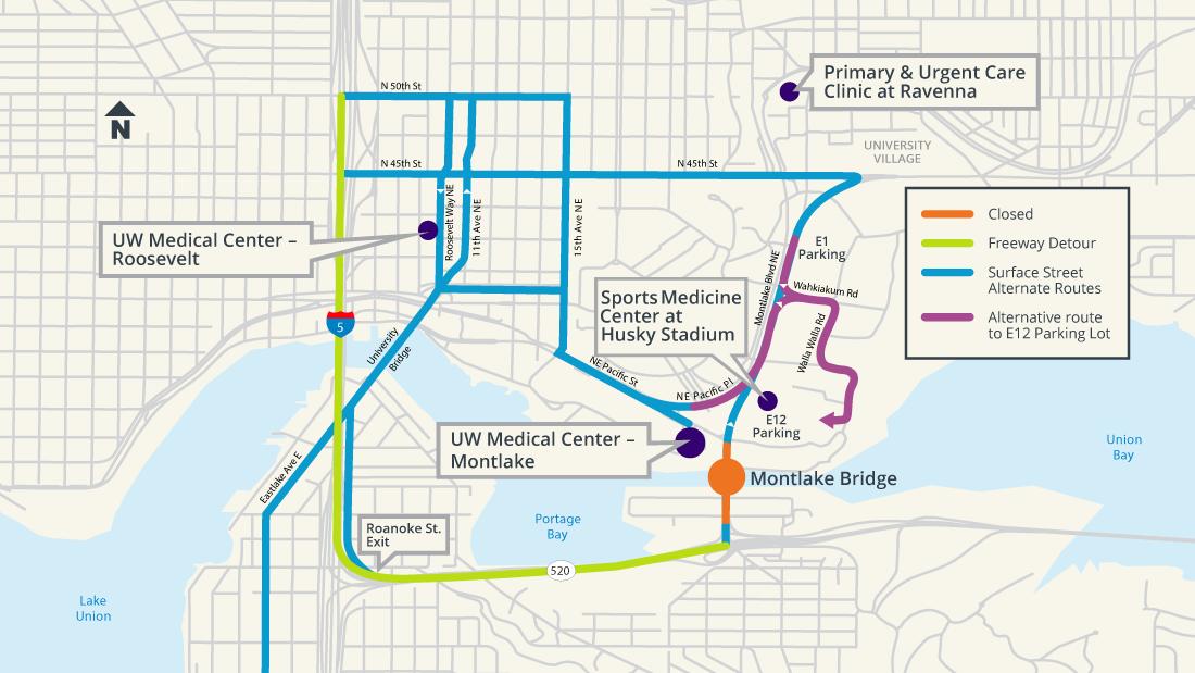 Montlake route options map